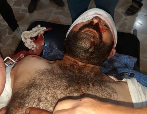 Քամիշլոյում ողջ գիշեր իրականացվել է սպանդ (տեսանյութ, լուսանկար)