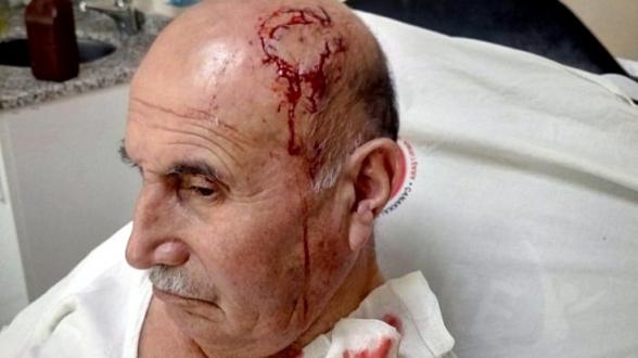Թուրքիայում 74-ամյա քուրդ տղամարդը դաժան ծեծի է ընթարկվել ՝ իր կնոջ հետ քրդերեն խոսելու համար