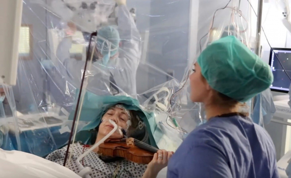 Կինը ջութակ է նվագում՝ ուղեղի վիրահատության ժամանակ