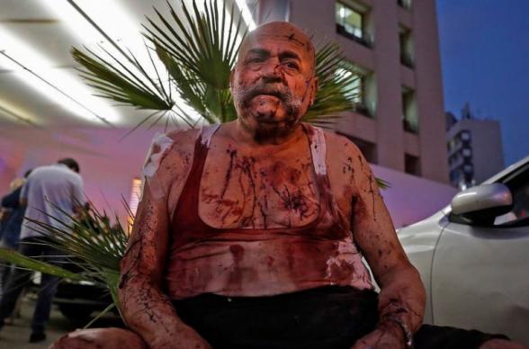 Число жертв взрыва в Бейруте достигло 78, более 4 тыс. ранены (видео)