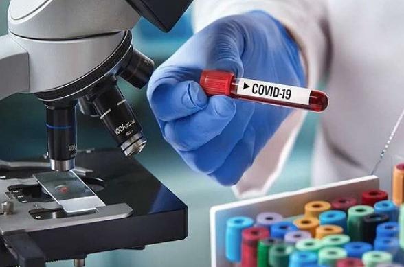 За сутки в Армении выявлен 221 новый случай коронавируса, скончались еще 4 человека